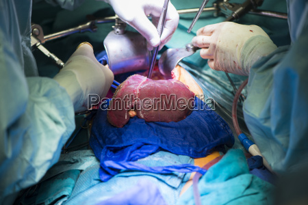 surgeons transplanting a liver
