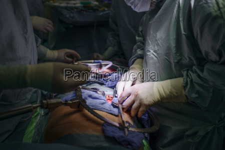 surgeons transplanting a kidney
