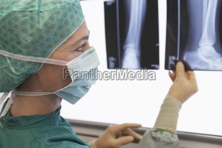 radiologist examining xray of leg