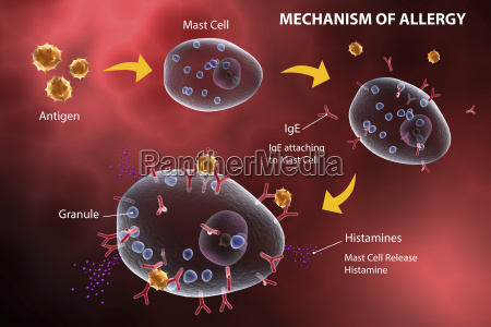mast cell releasing histamine due to