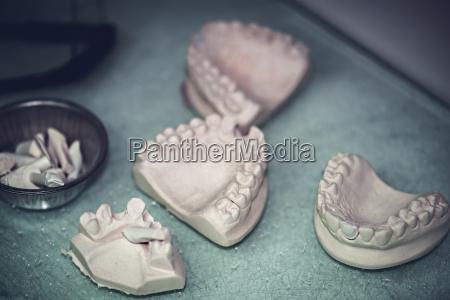 dental prosthesis prosthetic laboratory