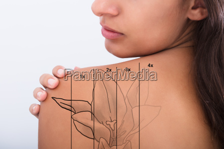 tattoo removal on womans shoulder