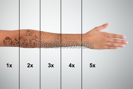 tattoo removal on womans hand