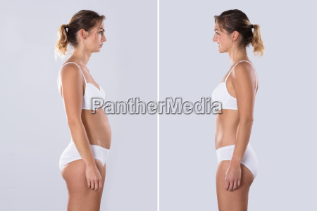woman before and after from fat