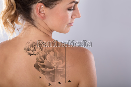 laser tattoo removal on womans shoulder