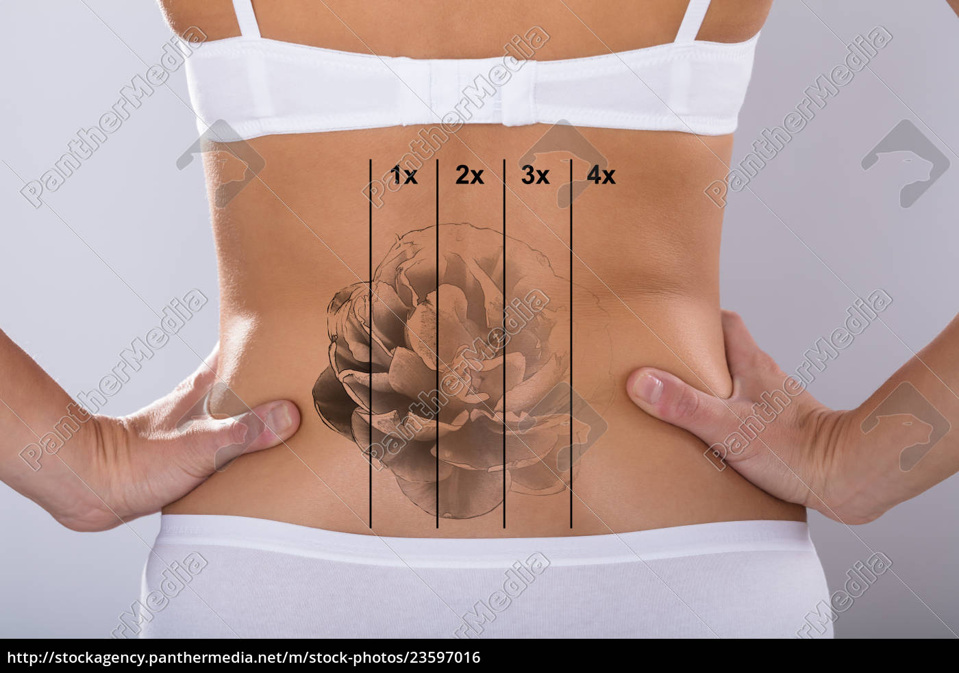 laser, tattoo, removal, on, woman's, hip - 23597016