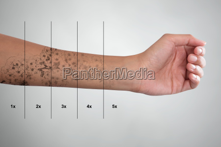 tattoo, removal, on, woman's, hand - 23603592