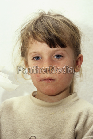 bed infect means agent medicine drug