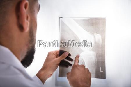 doctor examining knee x ray