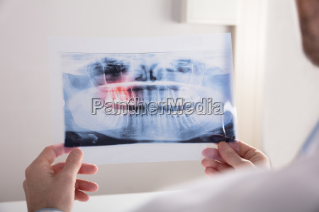 doctor holding teeth x ray