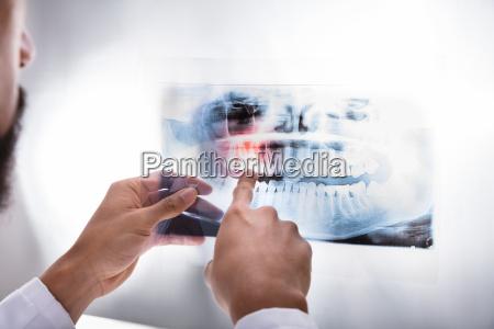 dentist examining teeth x ray
