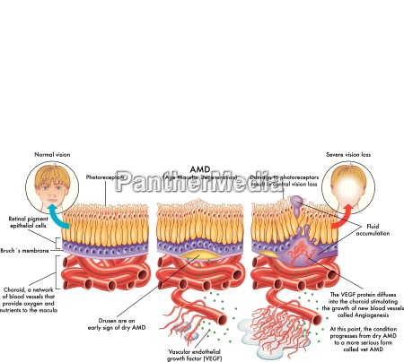 medical illustration of the symptoms of