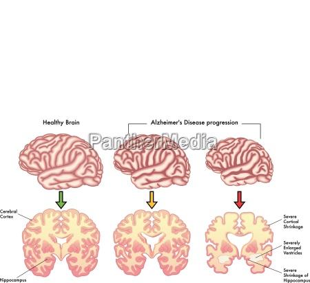 medical vector illustration of alzheimers disease