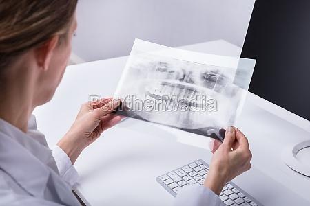 dentist holding teeth x ray