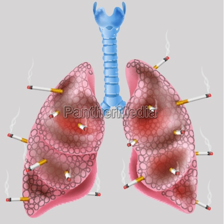 cigarette on the lung