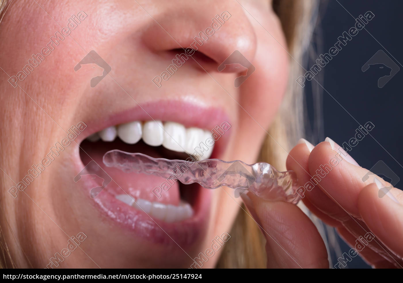 woman, wearing, clear, aligner - 25147924