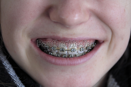 braces mouth of a girl teenager