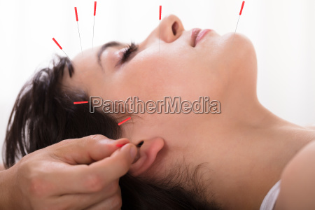 therapist, performing, acupuncture, treatment, on, woman - 25333400