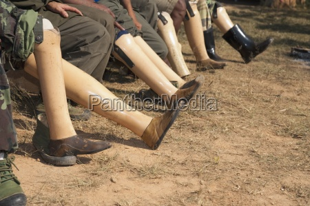 artificial legs of landmine victims burma