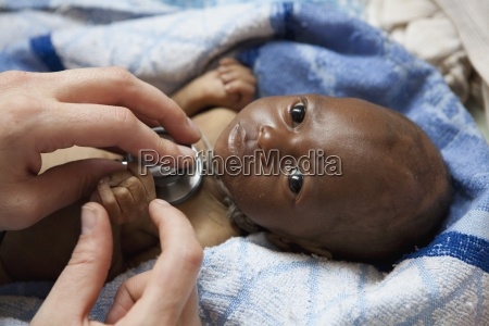 an infant dying of hivaids being