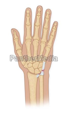 hand bones with injury