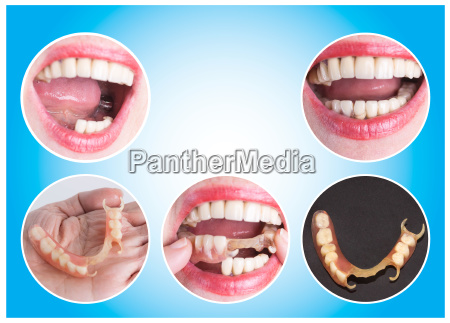 dental rehabilitation with upper and lower