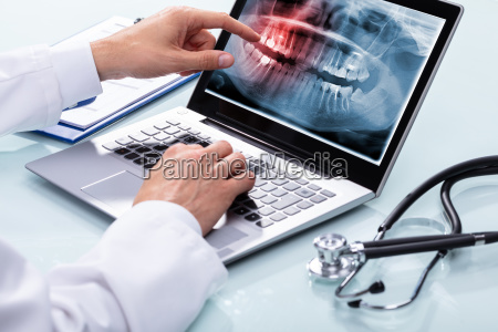 dentist examining teeth x ray on