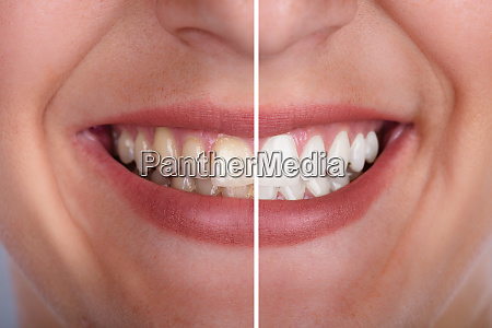 womans teeth before and after whitening