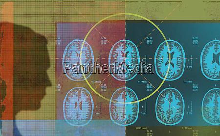 man analyzing mri scan results