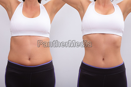 before and after concept showing fat