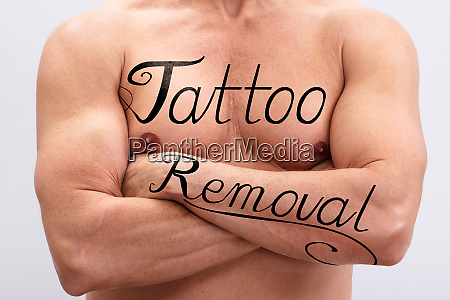 tattoo removal text on mans body