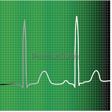 a green ecg monitor with heart