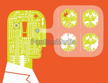 robot doctor analysing brain scans
