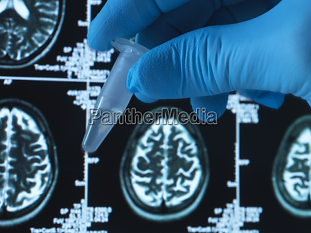 pharmaceutical research into brain disorders including