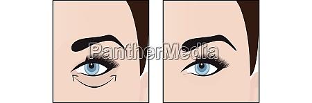 dark circles under eyes to remove