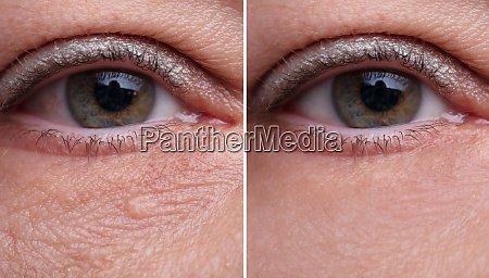 eye bags before and after cosmetic