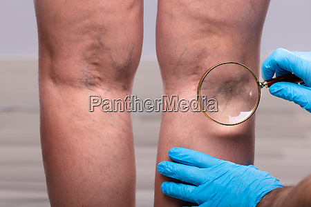 varicose veins on mans leg through