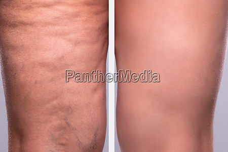 persons leg before and after cellulite