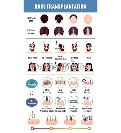 baldness of men and women methods