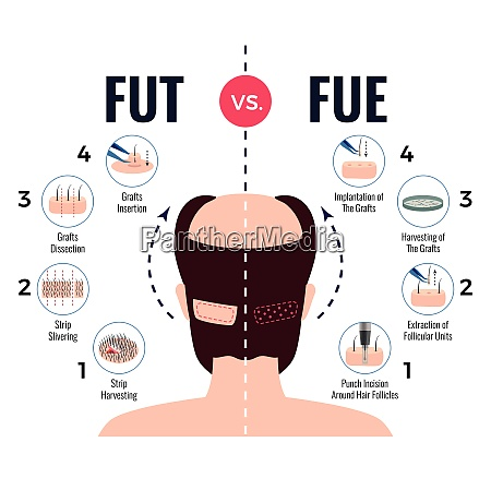 methods of hair transplantation fut vs