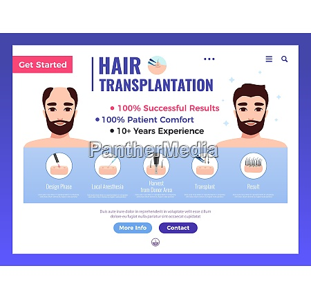 hair transplantation web banner with infographics
