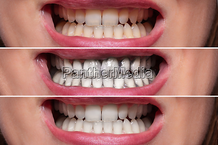 person teeth before and after cleaning