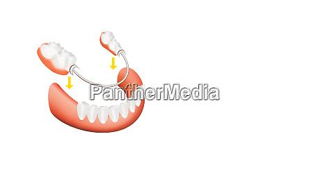 closeup of dental skeletal prosthesis with