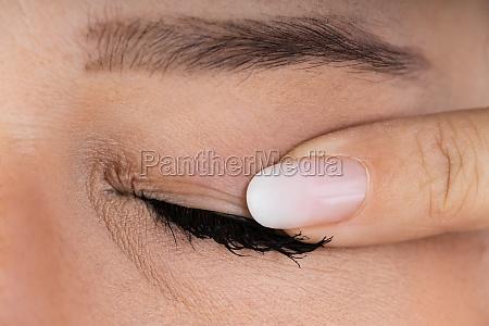 woman massaging infected eye