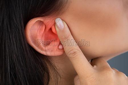 woman suffering from sore ear