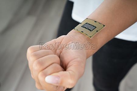 female wrist with implant