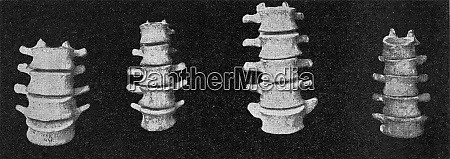 comparative table of lumbar vertebral columns