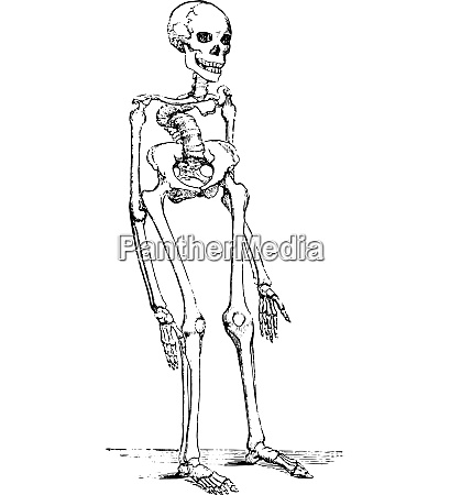 skeleton deformed by rickets which deflected