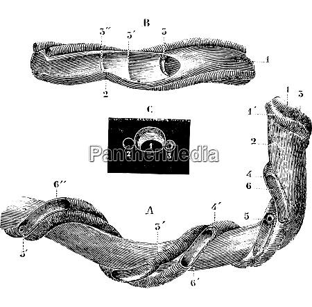 umbilical cord vintage engraving