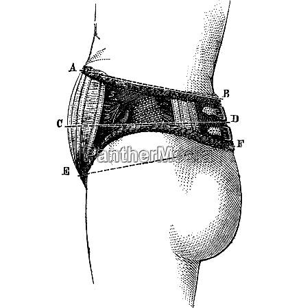 english abdominal elastic fabric side view